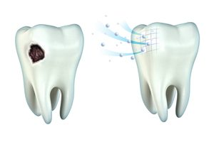 Tooth Cavity and Remineralization